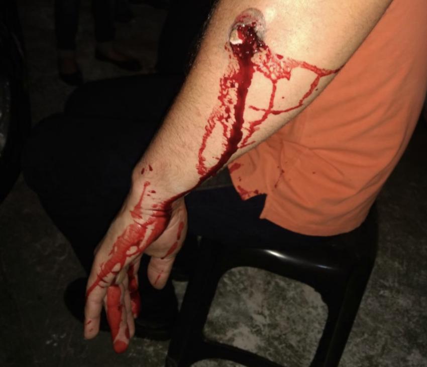 """Dr. Rosinha, sobre o massacre da PF do Paraná: """"Atiravam e se regozijavam dessa 'proeza'"""""""