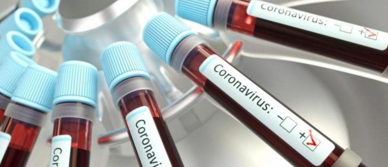 Medicina Preventiva da USP repudia falas de Bolsonaro: Combate ao Covid-19 tem de ser pautado na Ciência